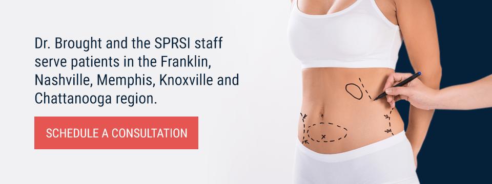 Tummy Tuck Surgery | Abdominoplasty | Franklin, Nashville TN