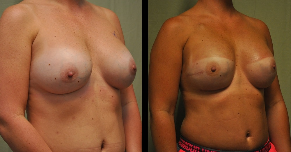before and after pictures of breast reconstruction from the front