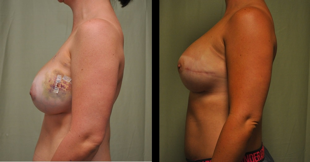 before and after pictures of breast reconstruction from the side