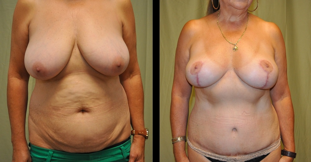 before and after pictures of grandmommy breast lift from the front