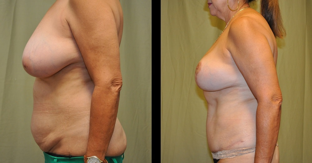 before and after pictures of grandmommy breast lift from the side