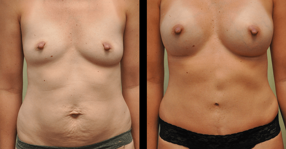 before and after pictures of mommy makeover surgery