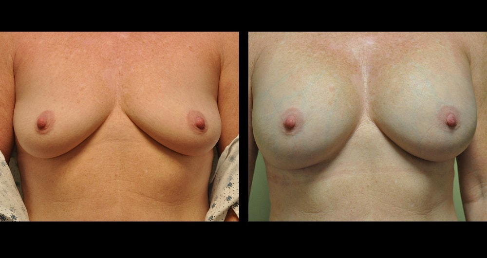 before and after pictures of breast augmentation