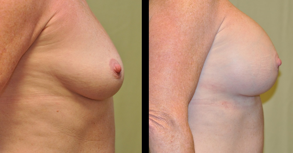 before and after pictures of breast augmentation from the side