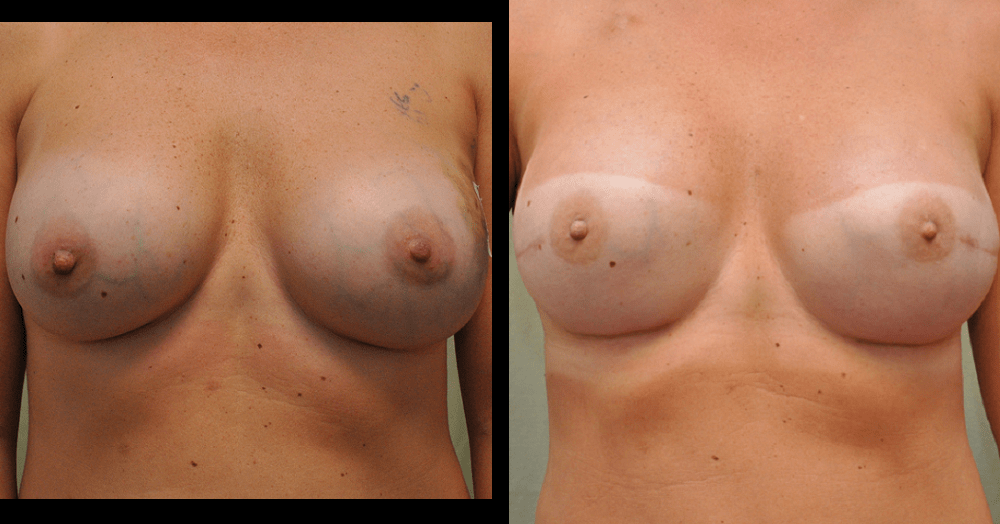 before and after pictures of breast reconstruction