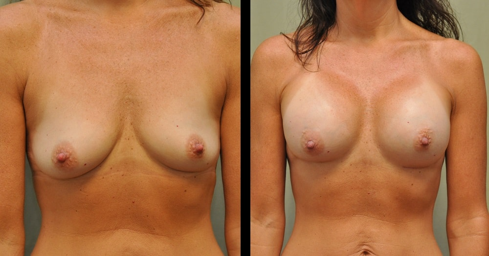 breast augmentation before after photo