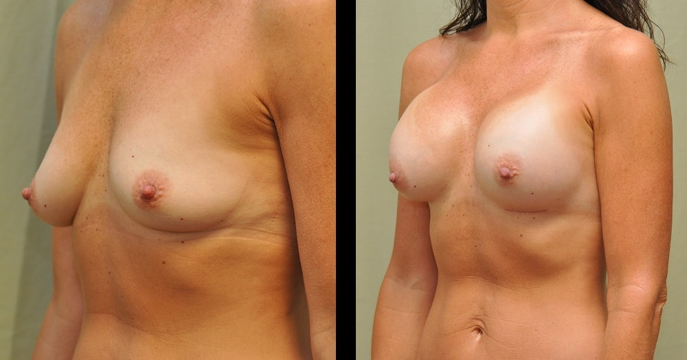 breast augmentation before after photo from the side