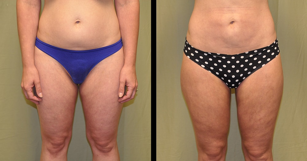 before and after liposuction in nashville