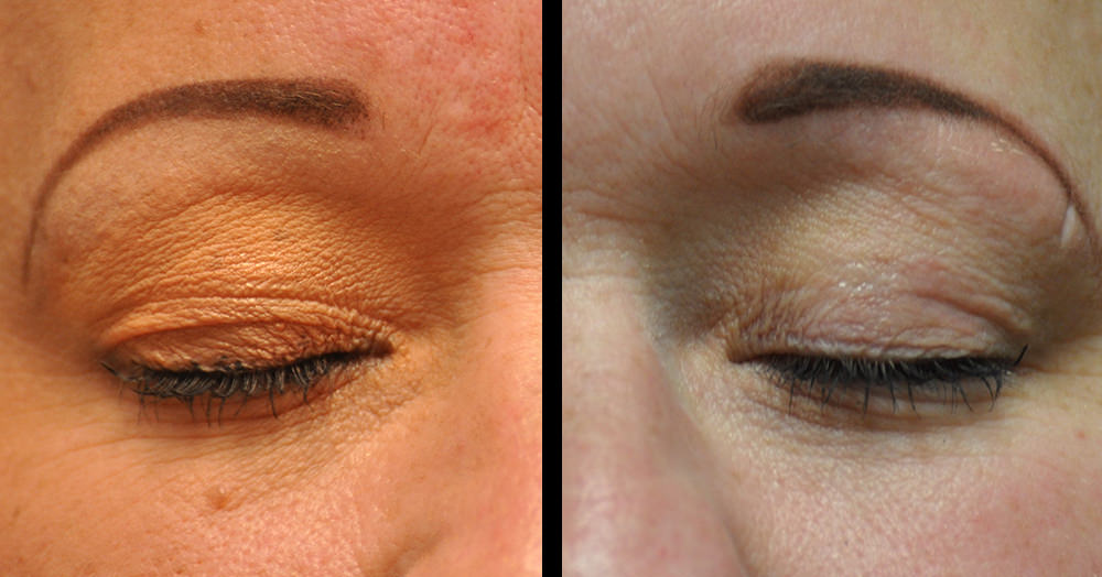 blepharoplasty eyelid surgery before and after