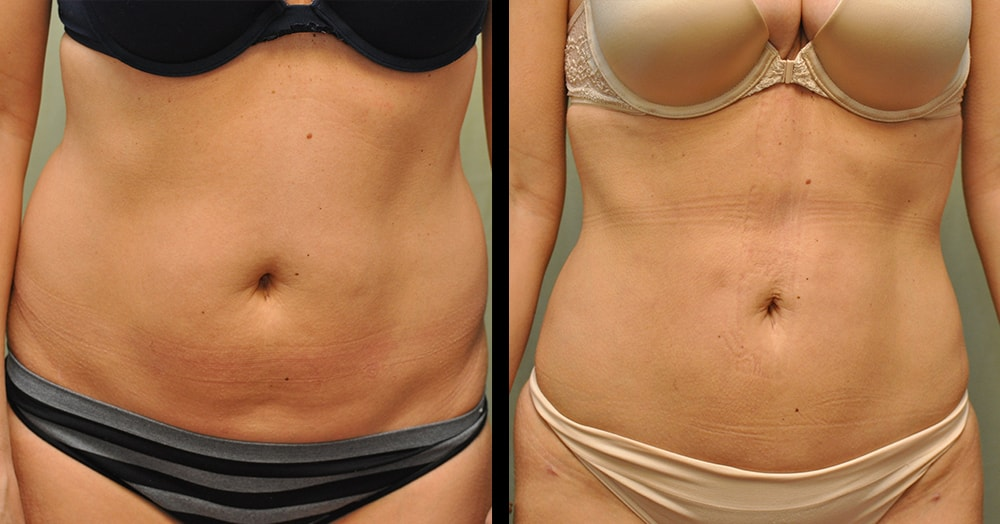 Determine Which Body Parts Can Have Liposuction | SPRSI Blog
