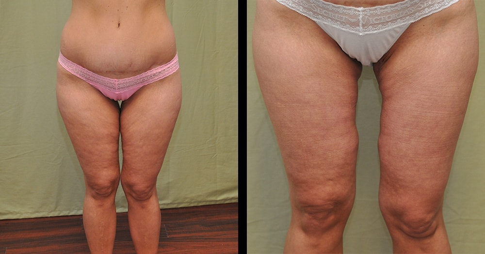 photos of medial thigh lift in nashville