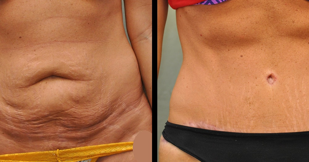 Tummy Tuck Recovery What to Expect? - RealSelfcom