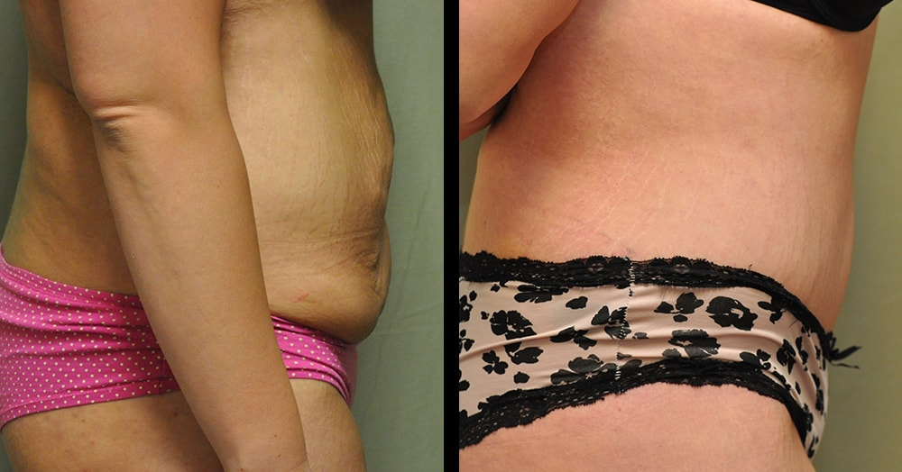 tummy tuck and abdominoplasty gallery