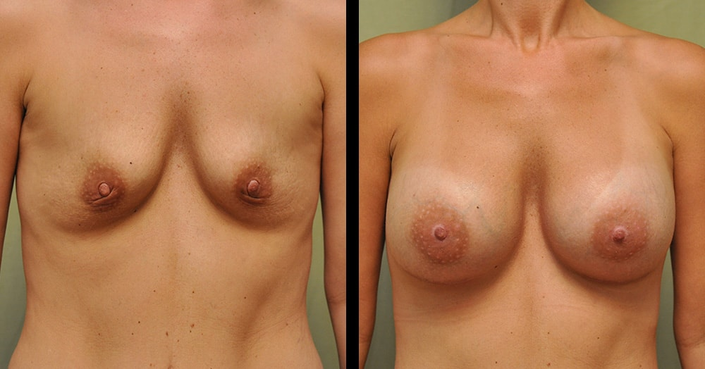 nashville breast augmentation before and after pics