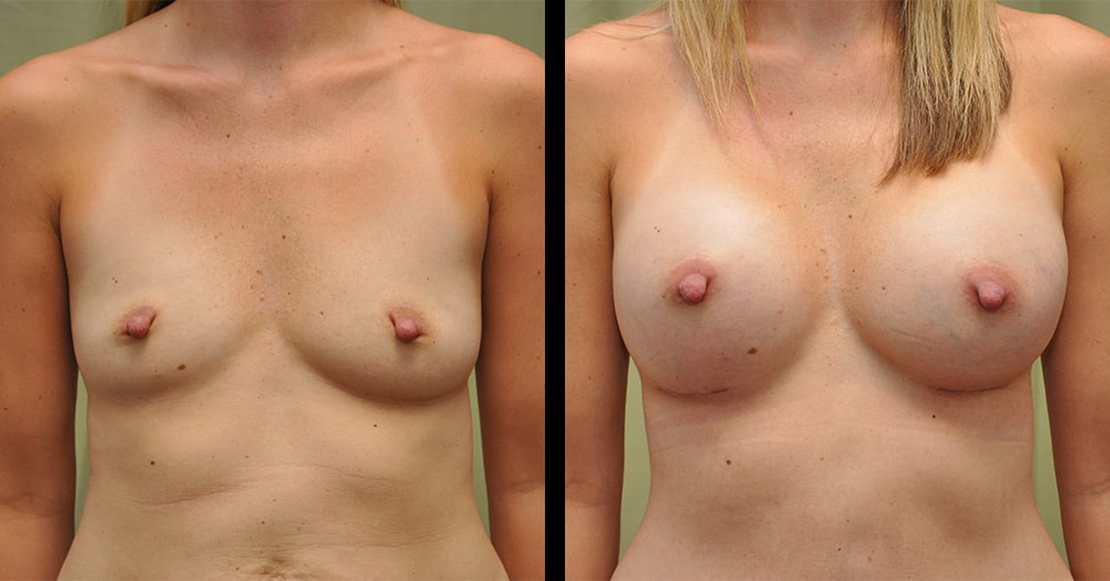 photos of breast augmentation surgery