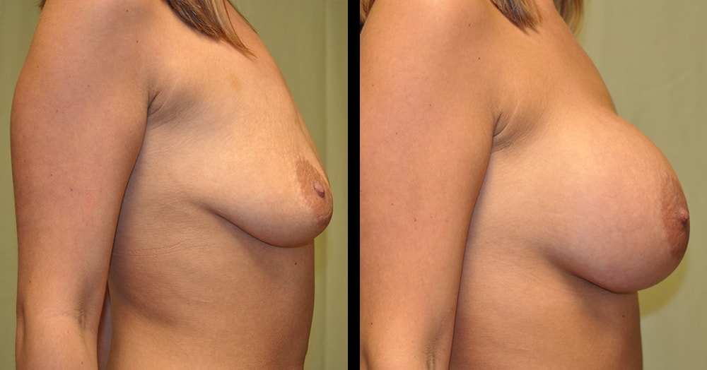 before and after photos of breast augmentation surgery