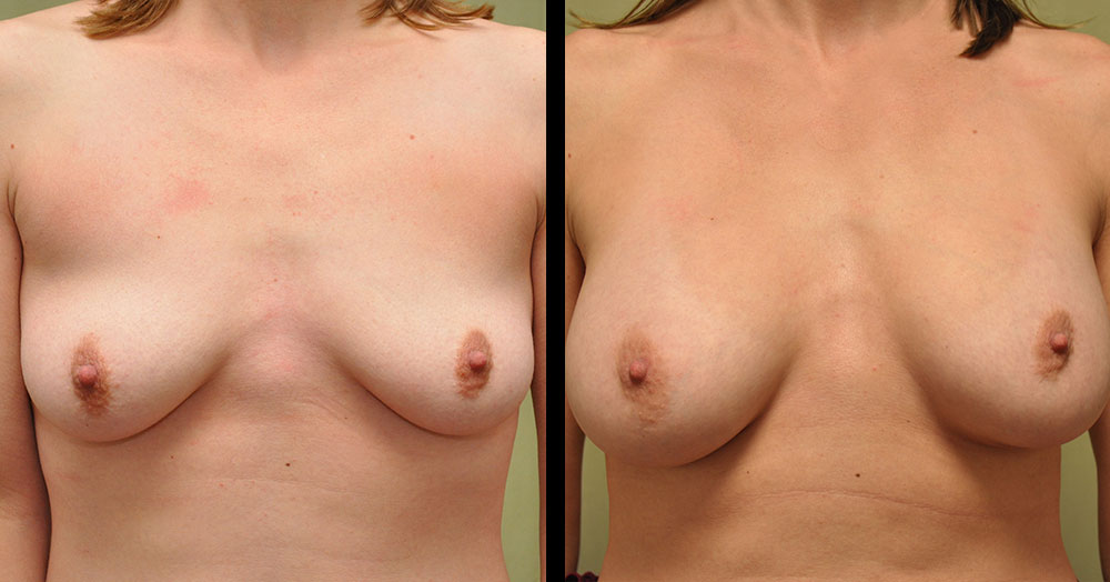 breast augementation surgery picture