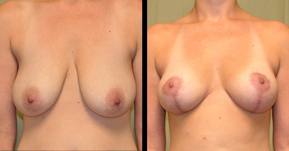 breast lift and mastopexy before and after photos