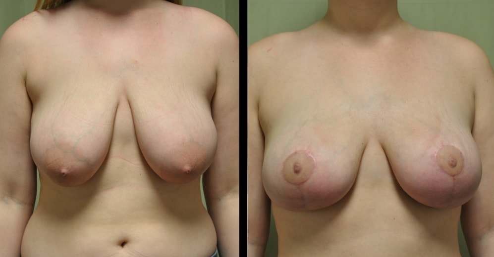 breast lift before and after photos in franklink, tn