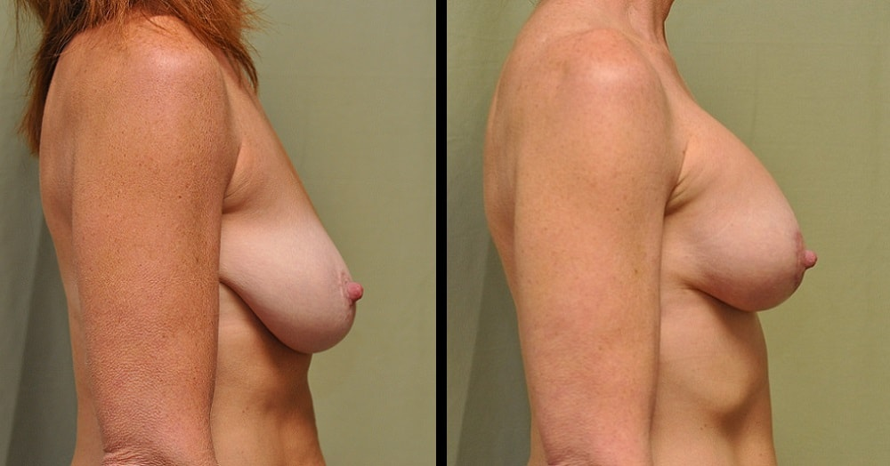 breast lift and implant surgery photos