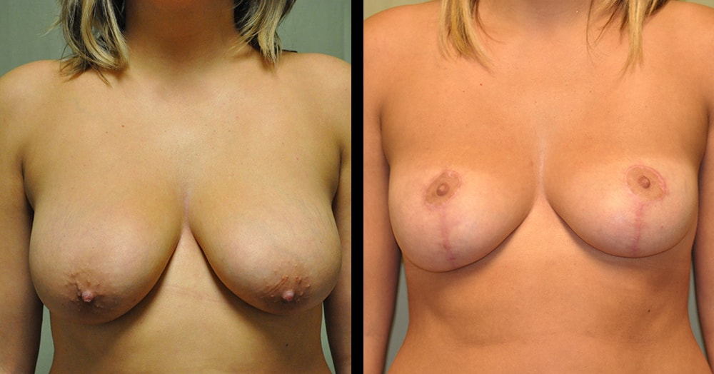 breast reduction plastic surgery before and after photos