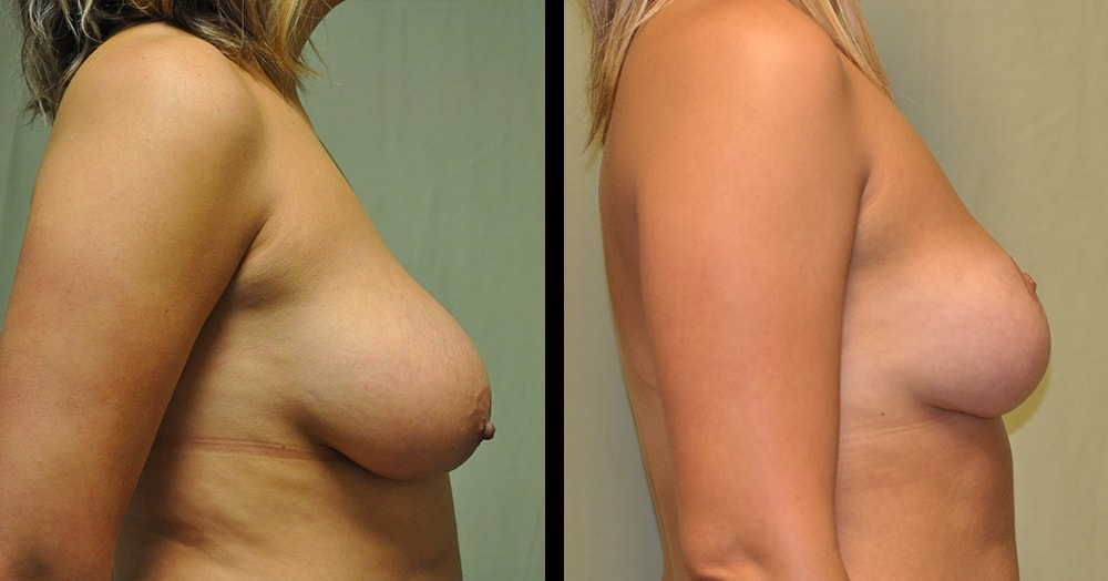 breast reduction plastic surgery picture