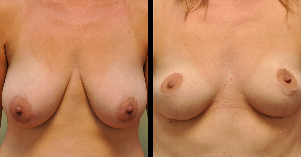 pictures of breast reduction surgery in franklin, tn