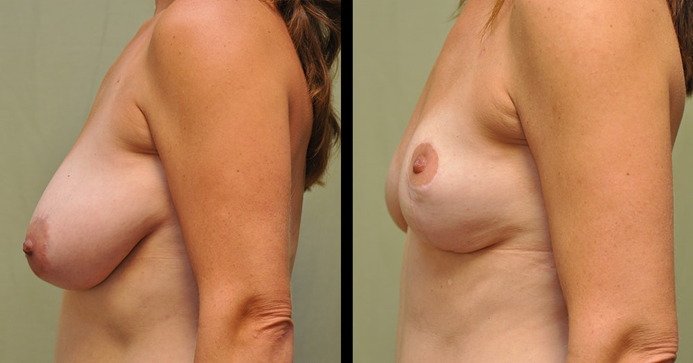 breast reduction post-op photos in franklin, tn