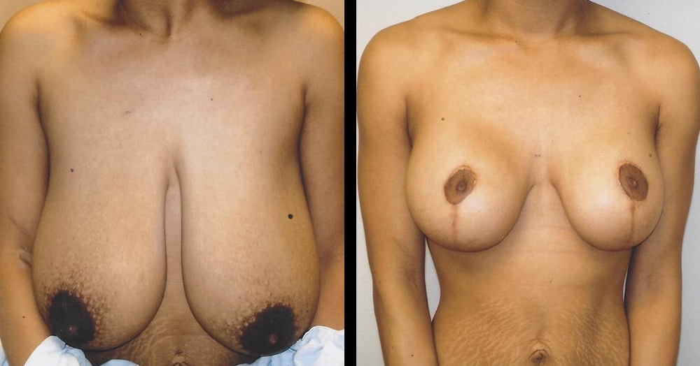 breast reduction surgery photos