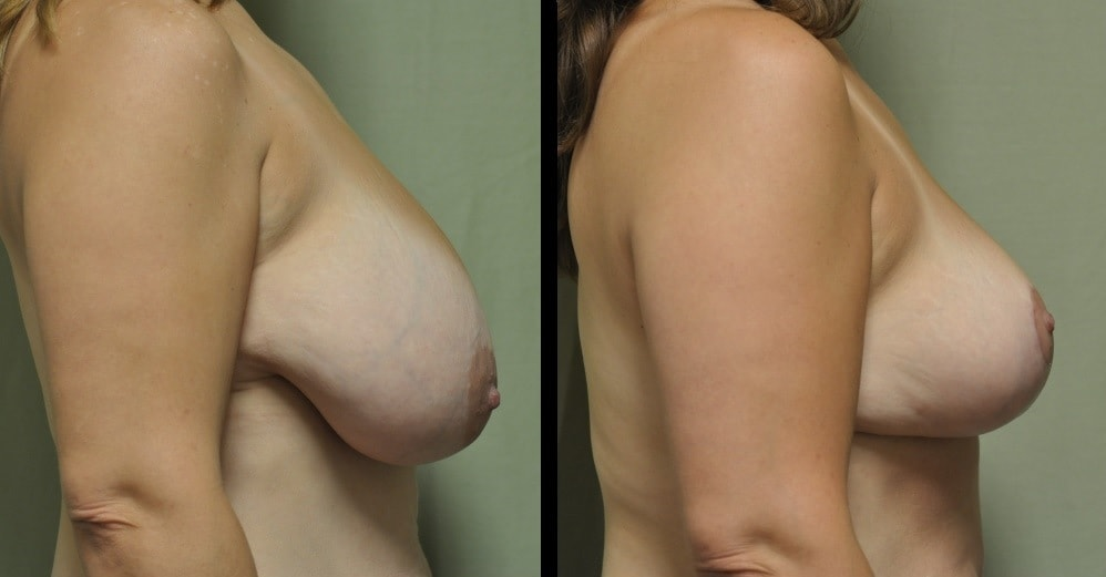 breast reduction photos from nashville plastic surgeon