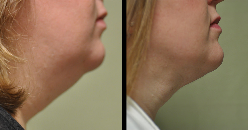 jaw liposuction surgery before and after photos