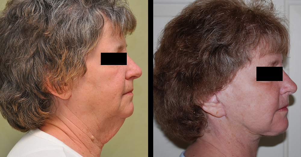 before after neck lift