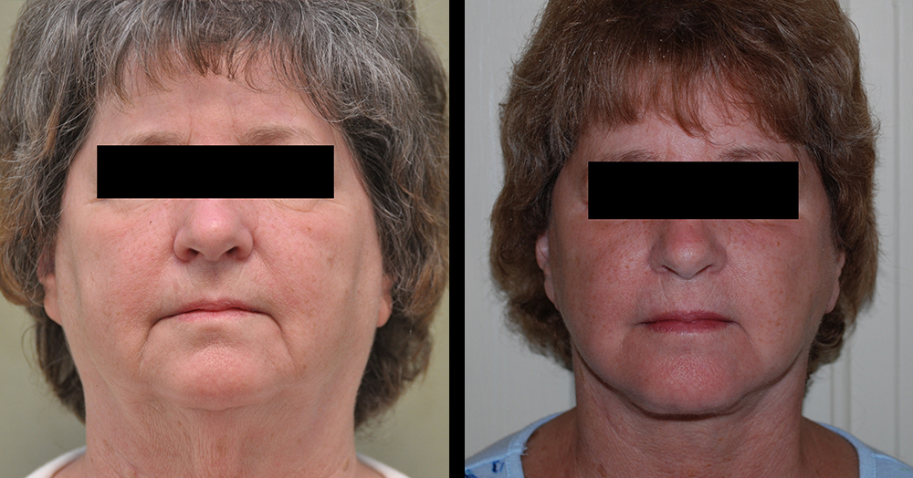 female necklift plastic surgery before and after