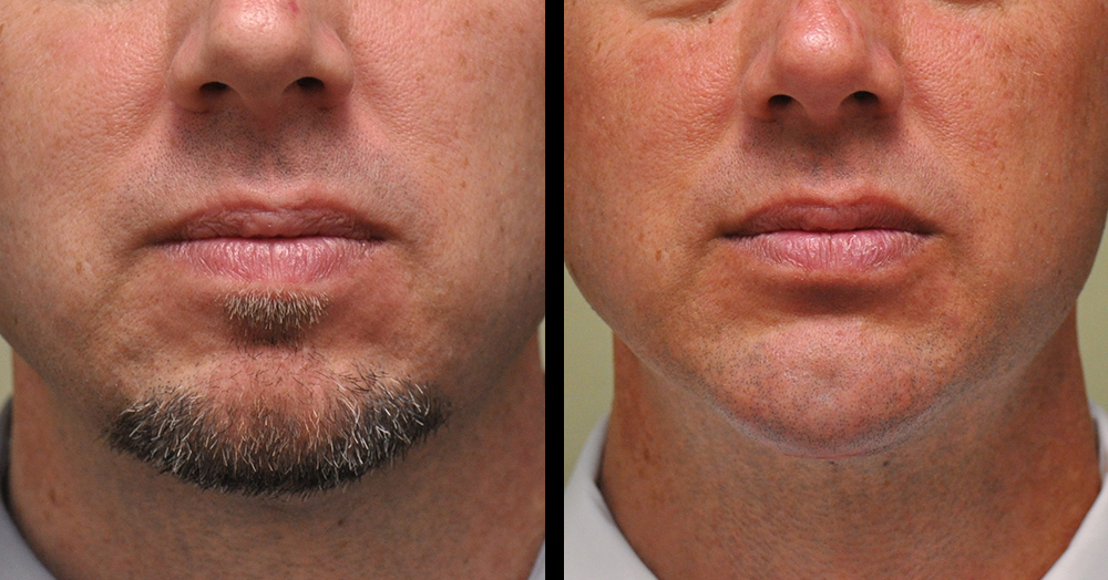 face necklift surgery before and after