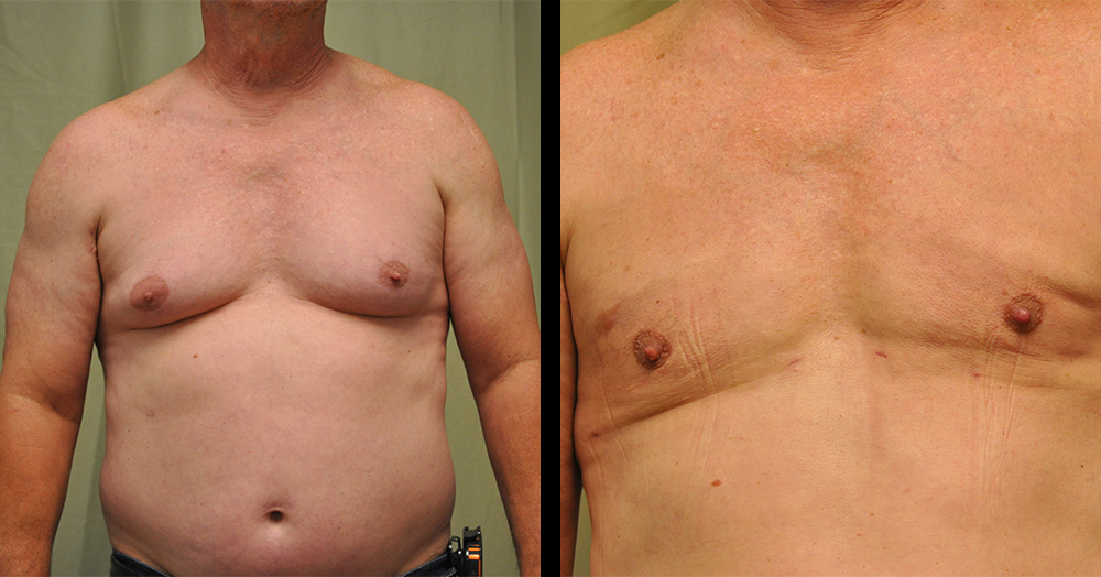 before and after pictures of gynecomastia surgery