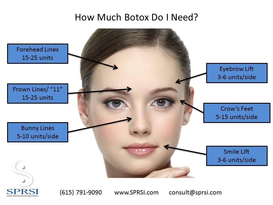 Botox specialists in franklin tn nashville dr brought sprsi how much botox do i need solutioingenieria Image collections
