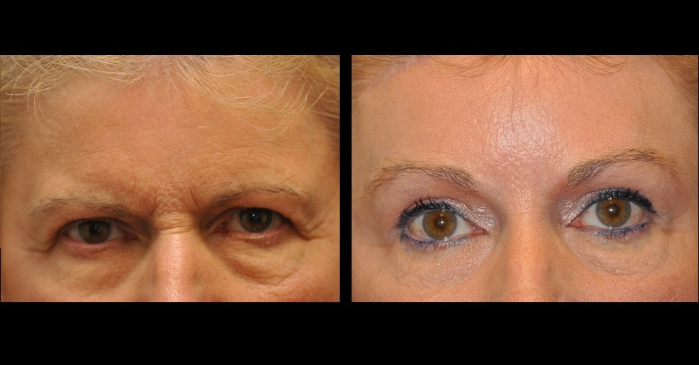 Upper Eyelid/Brow/Forehead Lift before and after